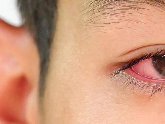 Mata Merah Pada Anak
